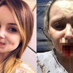 【閲覧注意】元カレに下唇を噛みちぎられてしまった女性の画像。