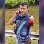 【閲覧注意】事故で左腕がちぎれた状態で普通に電話する男の映像。