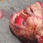 【閲覧注意】おでこが割れて脳が飛び出している男性の死体映像。