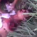 【閲覧注意】事故で左肩から腕が切断されてしまった男性の映像。