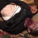 爆竹を口に入れて爆発させた男の死体画像。