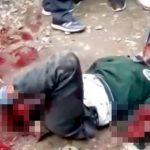 【閲覧注意】両腕と右脚を切断されて苦しむ少年のグロ動画。