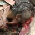 【閲覧注意】電車に轢かれて顔が潰れ腕が切断されてしまったグロ動画。