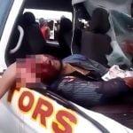 【閲覧注意】自動車事故で頭から脳がこぼれ落ちて死んだグロ動画。