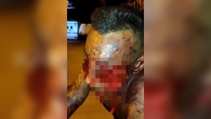 【閲覧注意】強盗に顔を撃たれて左目が無くなってしまった男のグロ動画。