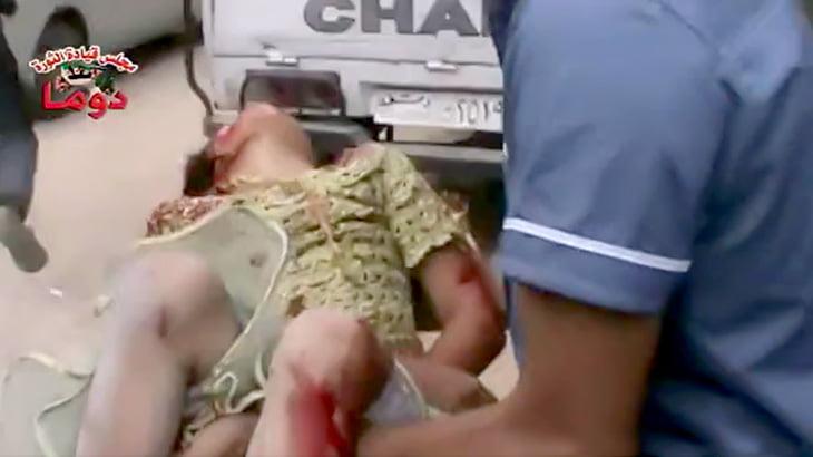 【閲覧注意】砲撃を受けて頭が破裂してしまった女の子のグロ動画。