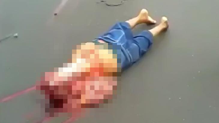 【閲覧注意】バイク事故で胴体を切断された男のグロ動画。
