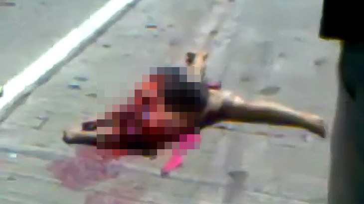 【閲覧注意】車に轢かれて頭がもげてしまった女の子の死体映像。