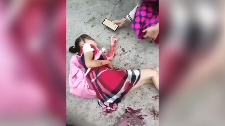 通り魔の男にナイフで刺されてしまった女子小学生の映像。