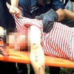 【閲覧注意】事故で死亡した男性、右目が飛び出したグロ動画。