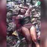 【閲覧注意】事故で右腕が裂けてしまった女性の映像。