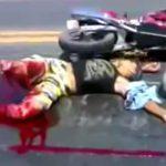 【閲覧注意】バイク事故で右脚切断されてしまった男性が苦しむ映像。