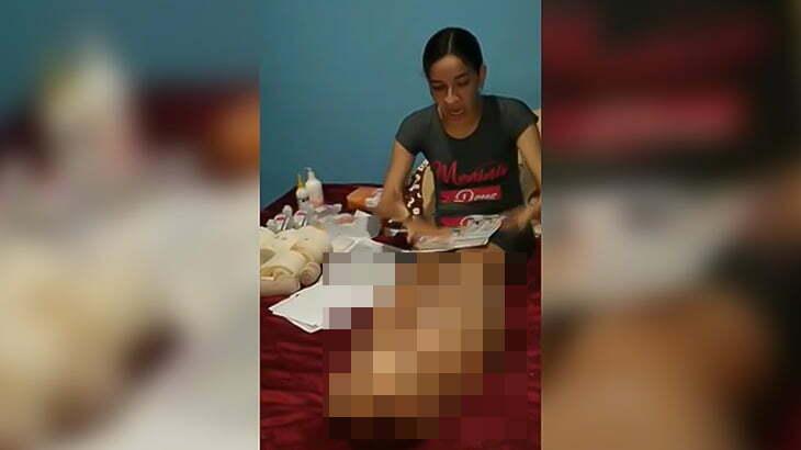 左脚だけ異様に腫れ上がってしまった女性の映像。