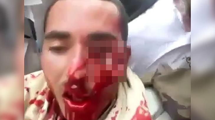 【閲覧注意】狙撃されて左頬をえぐられてしまった男性の映像。