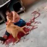 ペットのピットブルに噛みつかれて血だらけになってしまった男の映像。