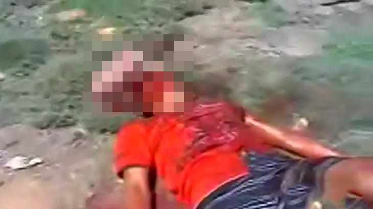 【閲覧注意】頭にスコップが突き刺さっている男が苦しむ映像。