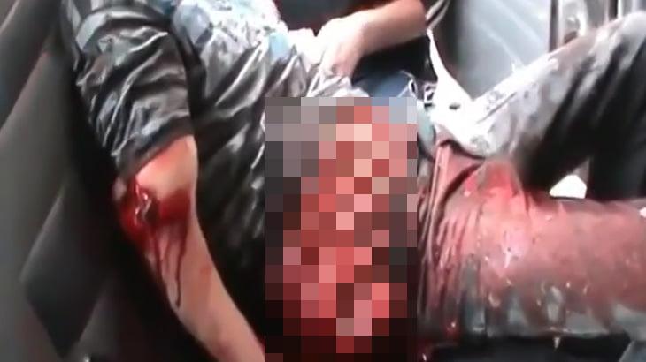 【閲覧注意】事故で腸が飛び出してしまった男性が意識朦朧とする映像。