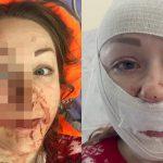 【閲覧注意】夫にマチェーテで顔を切り刻まれてしまった女性の自撮り画像。