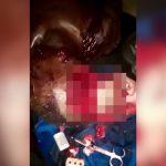 【閲覧注意】マチェーテで頭蓋骨をスライスされてしまった男性の映像。