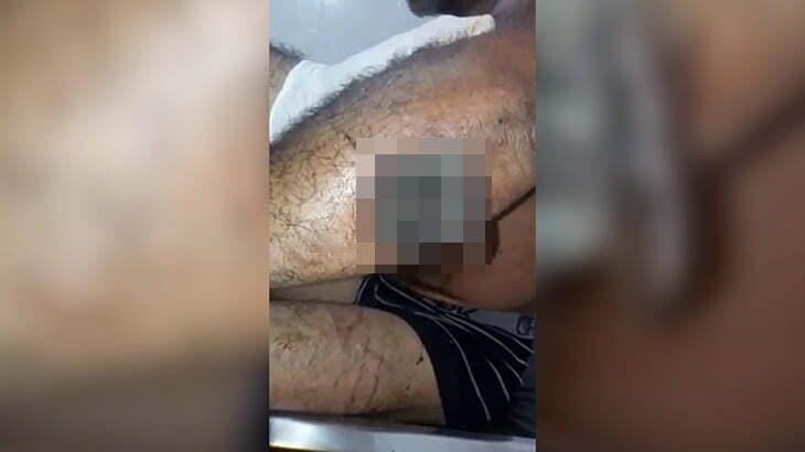 【閲覧注意】マチェーテで切られた傷を放置してたらウジ虫だらけになってしまった映像。