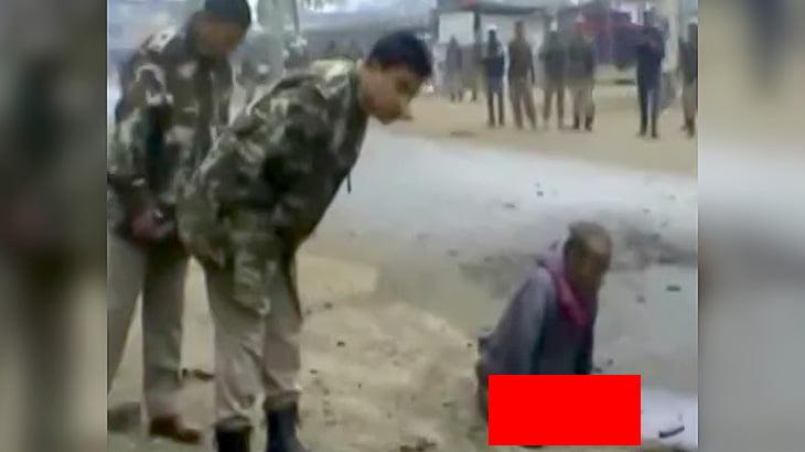 【閲覧注意】運んでいた荷物が爆発して両脚を失ってしまった男性の映像。