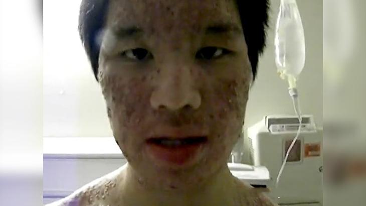 【閲覧注意】病院で処方された薬のせいで全身に湿疹が出来てしまった男性の映像。