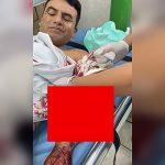【閲覧注意】左腕を切断された男性と右腕を切断された女性のグロ動画。