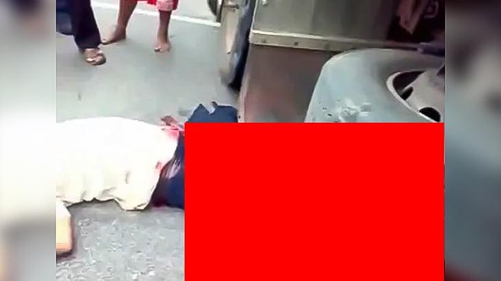 【閲覧注意】トラックに轢かれて両脚の皮膚がズル剥けになってしまったグロ動画。