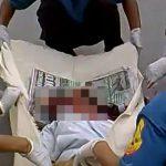 【閲覧注意】事故で頭が割れてしまった女性の死体を回収するグロ動画。