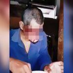 【閲覧注意】目と鼻が無く下顎しかない男が食事をする映像。