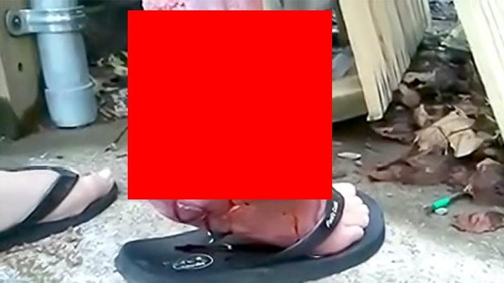 【閲覧注意】割れてしまった右足のくるぶしを撮影した映像