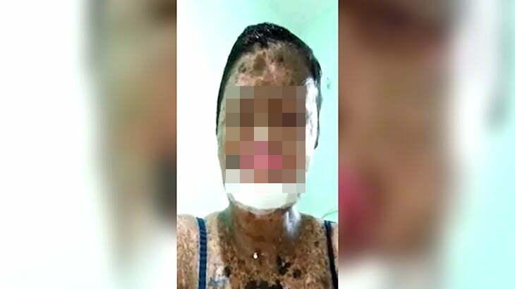 【微閲覧注意】大やけどを負って顔がただれてしまった女性の映像
