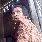 全身コブだらけの男性を撮影した映像