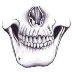 【閲覧注意】銃で破壊された顎を元に戻す手術映像