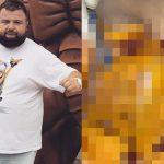 【閲覧注意】黄色い内臓脂肪がびっしり付いた男性の検死解剖画像。