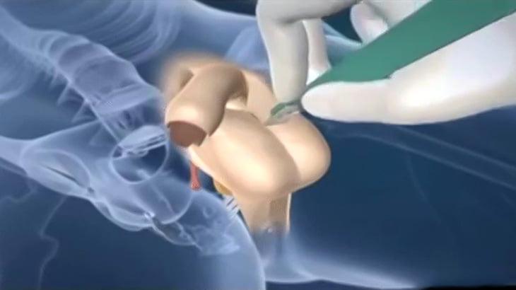 【閲覧注意】男性器から女性器を作り出す解説映像と実際の手術映像。