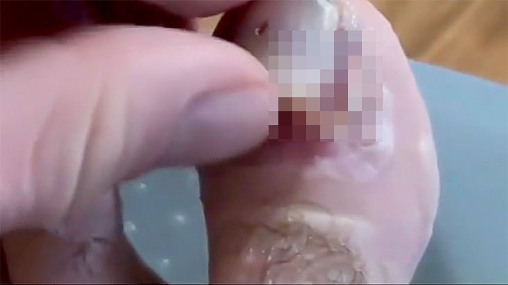 【微閲覧注意】脱皮みたいに足の爪が剥がれて下から新しい爪が出てくる映像