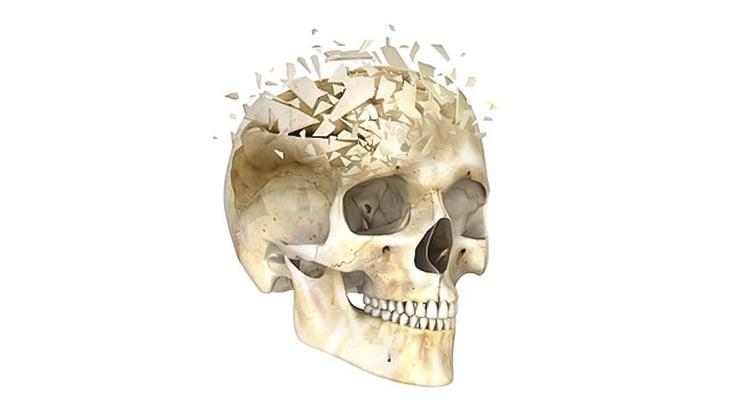 【閲覧注意】頭蓋骨を完全に破壊された人間の死体(動画)