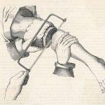 【閲覧注意】ギリギリ繋がってるグチャグチャの脚を切断する手術映像
