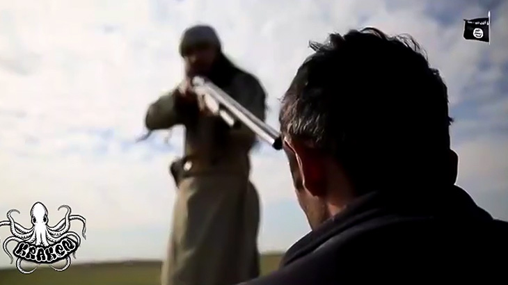 【閲覧注意】銃で頭を撃たれた男、左目がボコッと・・・(動画)