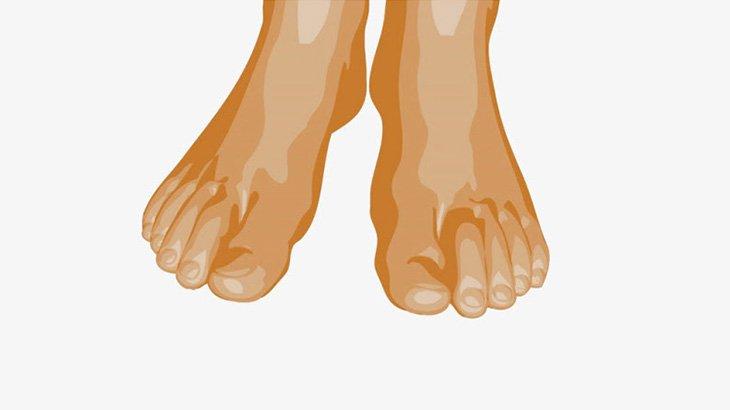 【閲覧注意】この男の足の指、ウジ虫がぎっしりと・・・(動画)