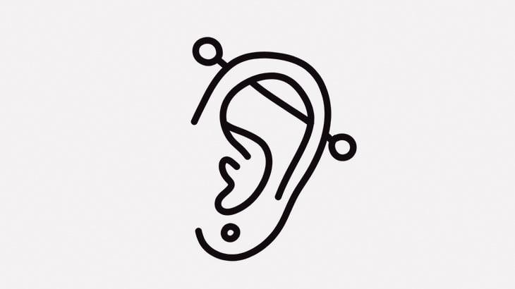 ピアス用の穴を拡張してもらっていた男の耳たぶ、ちぎれてしまう・・・(動画)