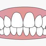 歯茎の膿をスッキリ吸い取る手術映像