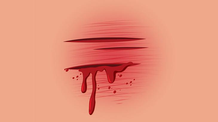 【閲覧注意】足首を切って血が吹き出る様子を撮影するメンヘラ女さん(動画)