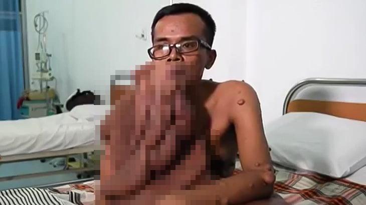 顔が溶けたような巨大な腫瘍を持つ男(動画)