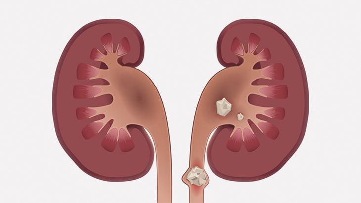 【閲覧注意】男性の腎臓から摘出された尿結石、デカすぎる・・・(動画)
