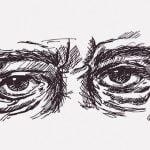 【閲覧注意】目の下に溜まった脂肪を摘出する手術映像