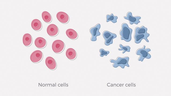 【閲覧注意】癌を発症した子供の顔、ヤバい・・・(動画)