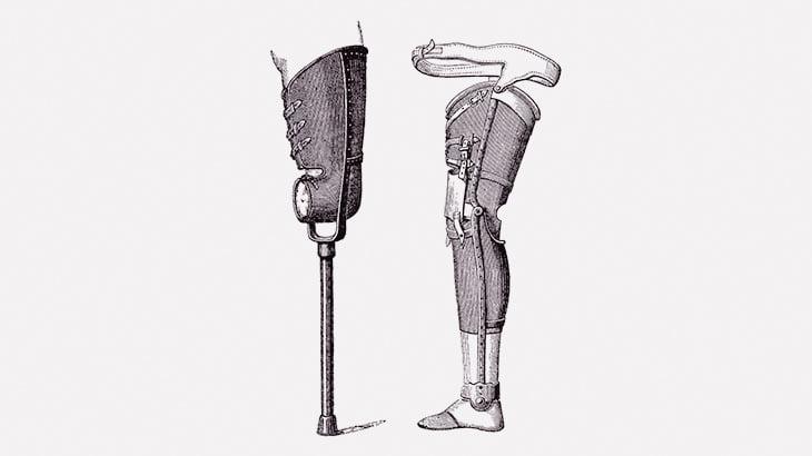 【閲覧注意】左脚を付け根からちぎられてしまった男(動画)