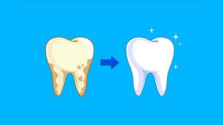 びっしりこびりついた大量の歯石を切除する手術映像
